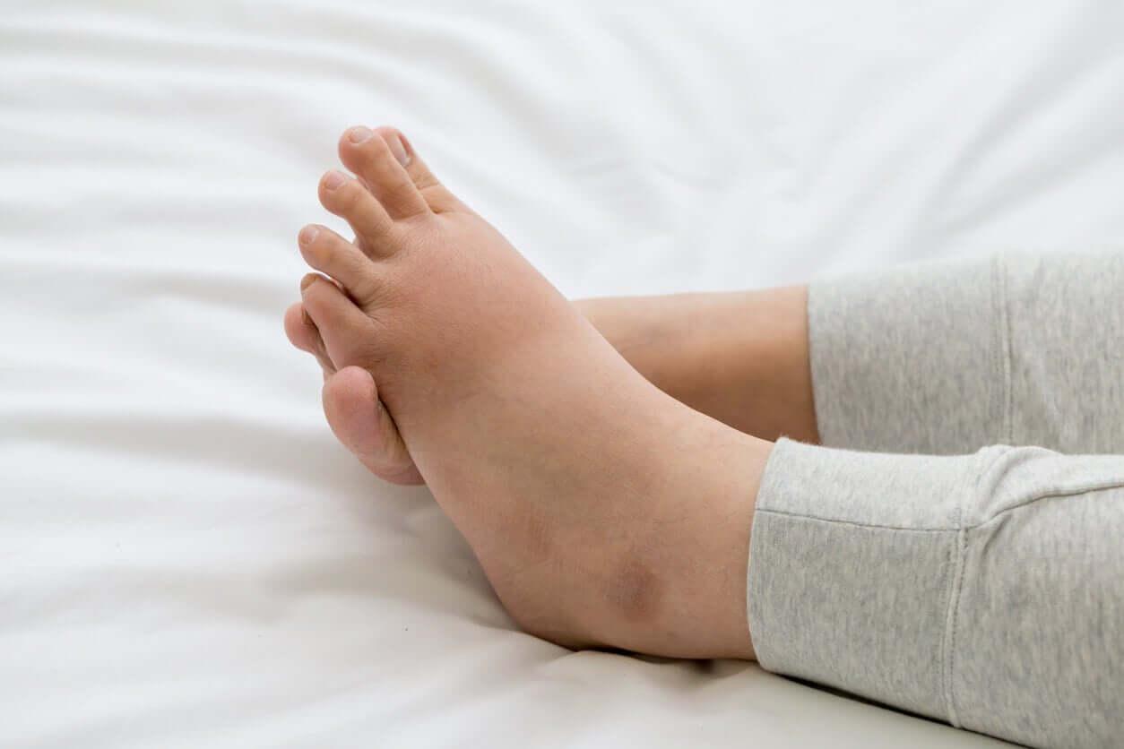 Gezwollen voeten na de bevalling