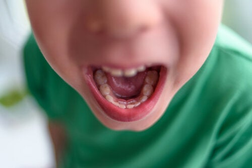 Double Row of Teeth in Children: What To Do?