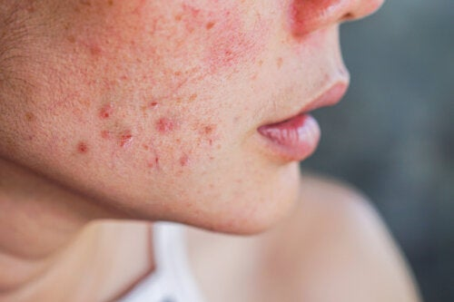10 Home Remedies Against Acne During Pregnancy
